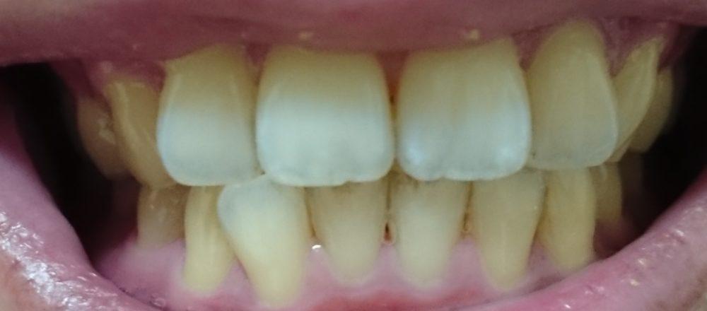 ホワイトニング前の歯(20190929)