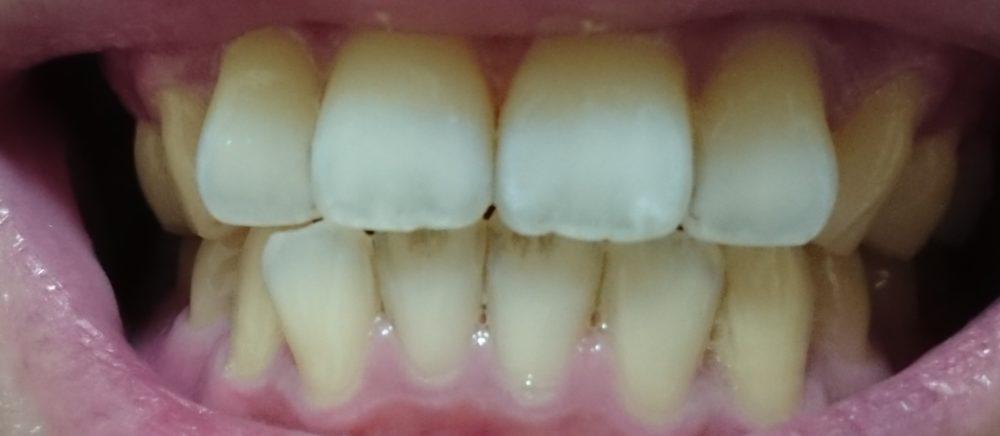 ホワイトニング後の歯(20190929)