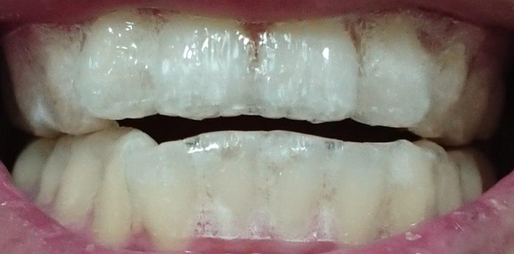 歯にシールを貼った状態の写真