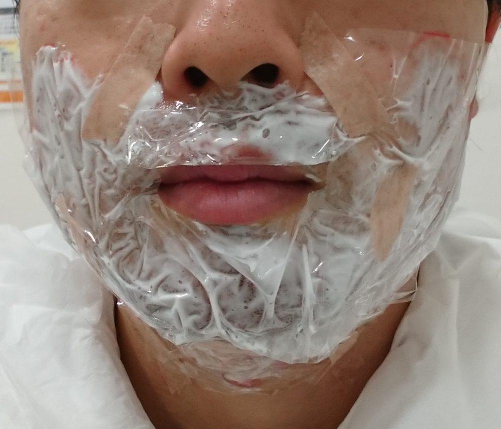レーザー脱毛前の麻酔クリームを塗った写真